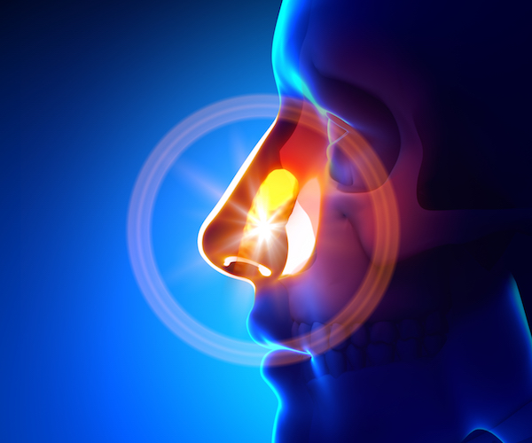 Nose & Paranasal Sinuses